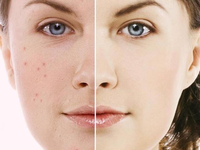 betametasona crema para acne