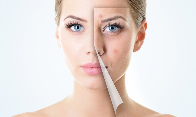 remedios caseros acné