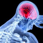 Encefalitis japonesa